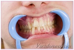 зубы макро фото