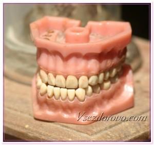 Зубной протез фото