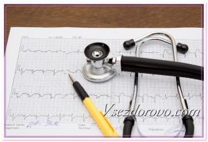 Фонендоскоп и электрокардиограмма у врача на столе