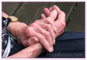 кожа на руках дерматит фото