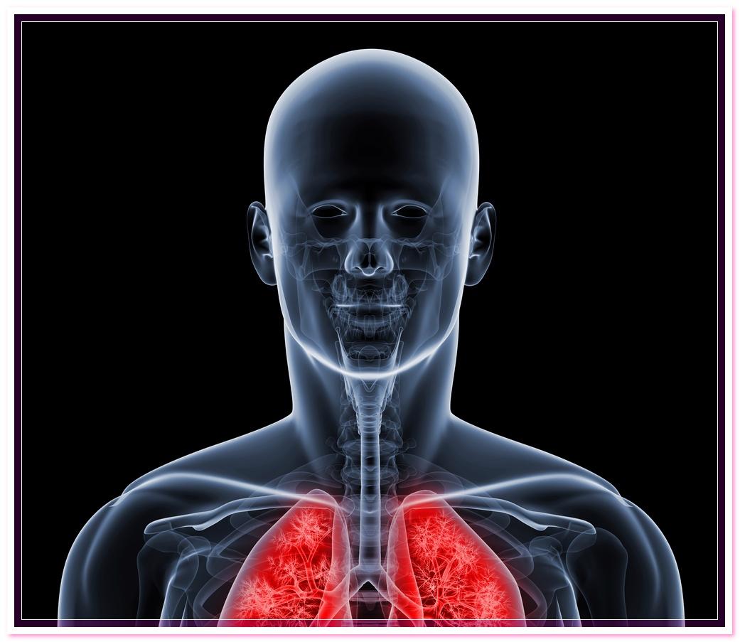 лечение пневмоний вызванной микоплазмой