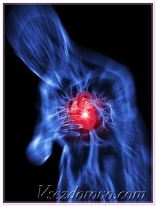 сердечный приступ 3д