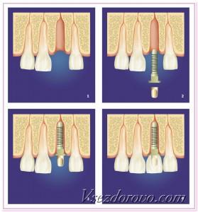 схема протезирования зубов при помощи штифтов