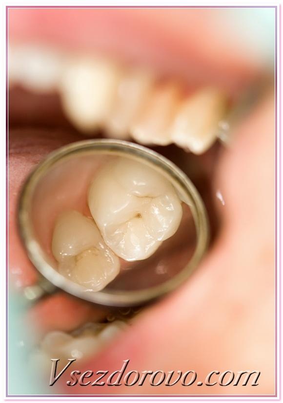 Что сделать перед удалением зуба 14 фотография