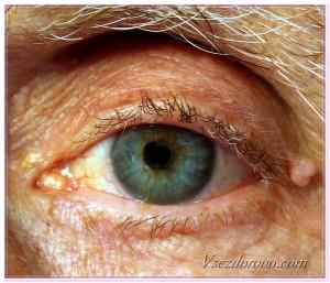 катаракта фото