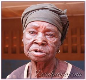 пожилая женщина с катарактой на глазах