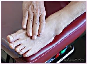 больной диабетом с нарушением кровоснабжения ног фото
