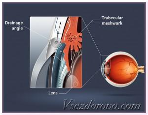 схема развития глаукомы фото