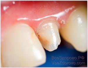 имплантация зуба фото