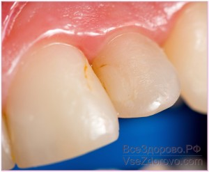 имплантация зубы фото