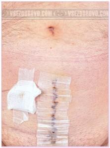 шрам после операции простатита