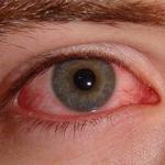 Покраснение белка глаз