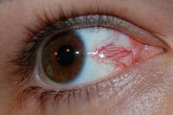 покраснение глаз за компьютером