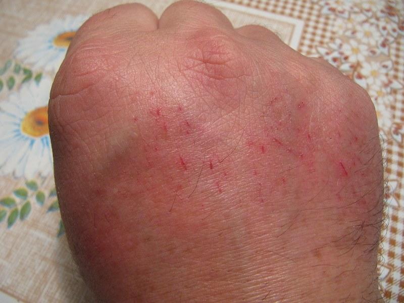 лечение травами от паразитов