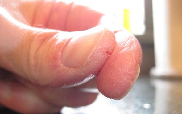 Причины и лечение трещин на руках