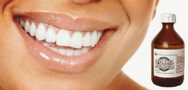 Отбеливание зубов йодом – Болезни полости рта