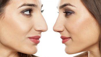 Тест: как определить характер человека по форме носа