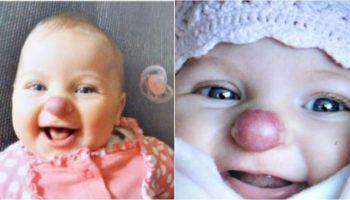 Ребенок родился с клоунским носиком: как спустя 3 года выглядит эта девочка
